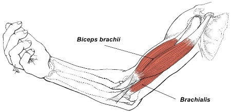 arm  elbow and thumb pain from brachialis muscle trigger