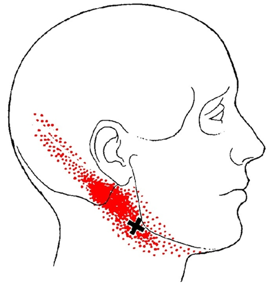 Jaw, Neck, Head, And Teeth Pain From Digastric Muscle